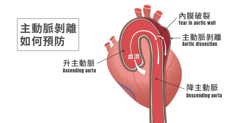 主動脈剝離如何預防?